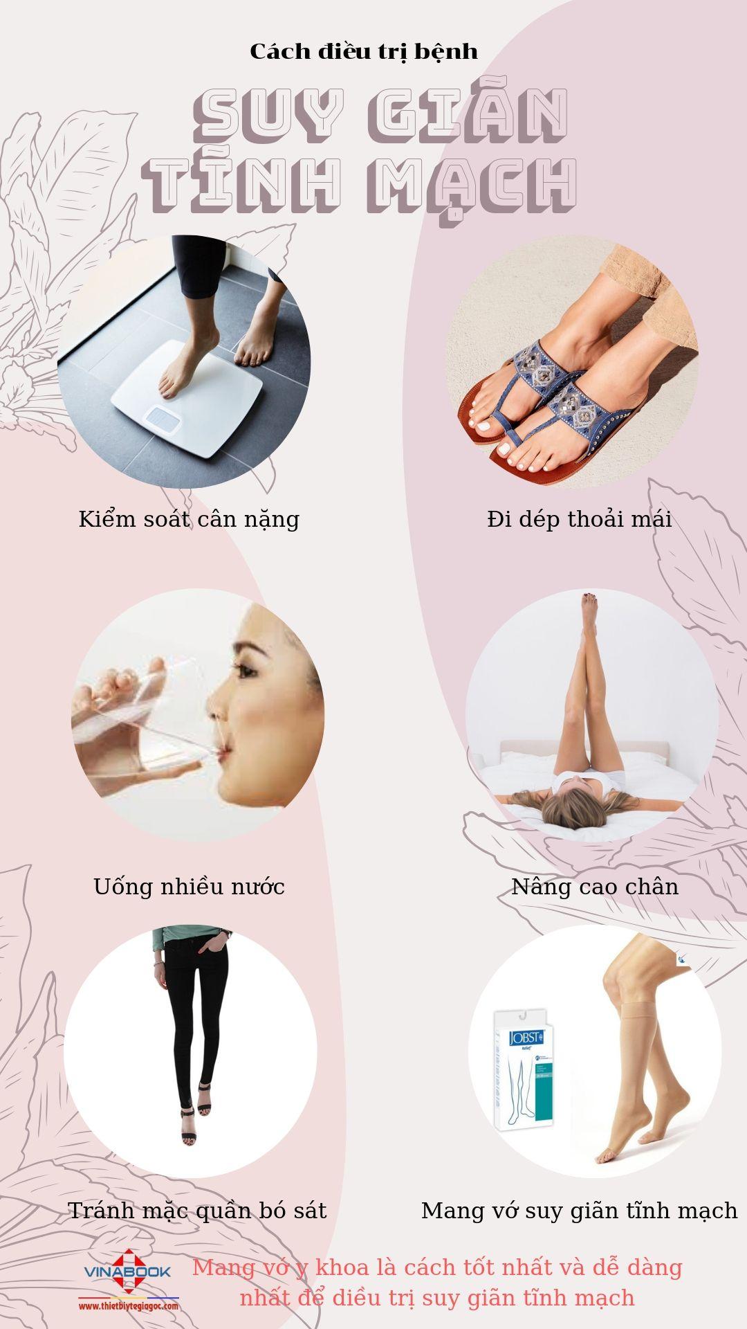 Cách điều trị bệnh suy giãn tĩnh mạch