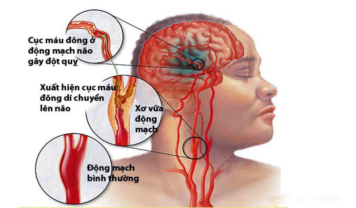tăng huyết áp gây đột quỵ